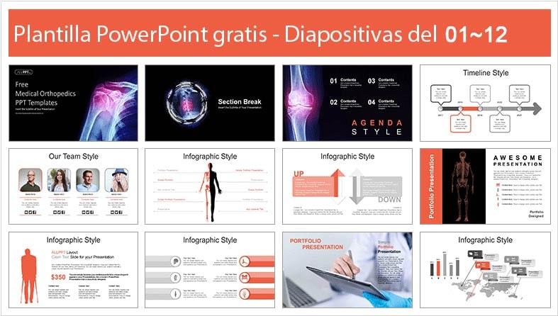 plantilla de tratamiento ortopedico en powerpoint.